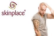 Gutschein für Tattooentfernung zum halben Preis! von skinplace